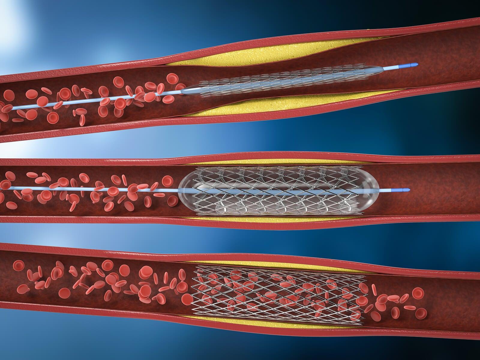 La angioplastia coronaria es unprocedimiento que se realiza bajo anestesia local en una sala de hemodinamia.
