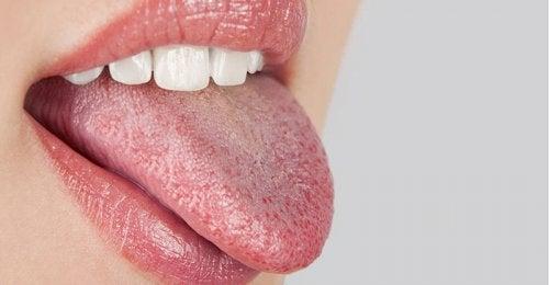 Boca seca por deshidratación
