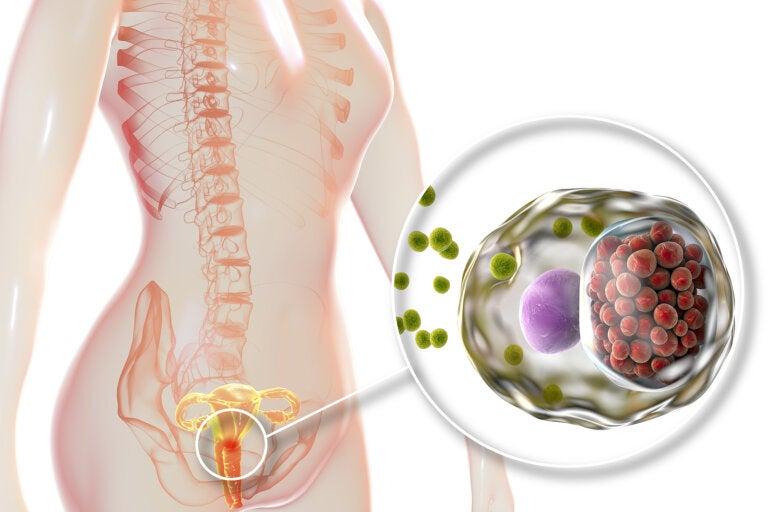 Clamidiasis: qué es y en qué consiste