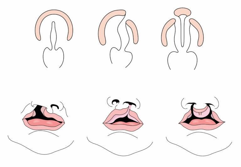 Labio leporino: causas y tratamiento