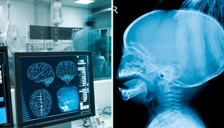Hidrocefalia: síntomas y tratamiento