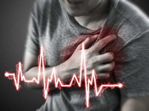 Qué es un infarto agudo de miocardio