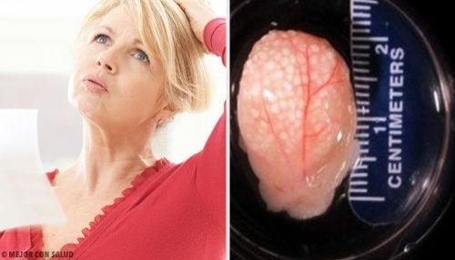 Bioingeniería: ovarios sintéticos para tratar la menopausia