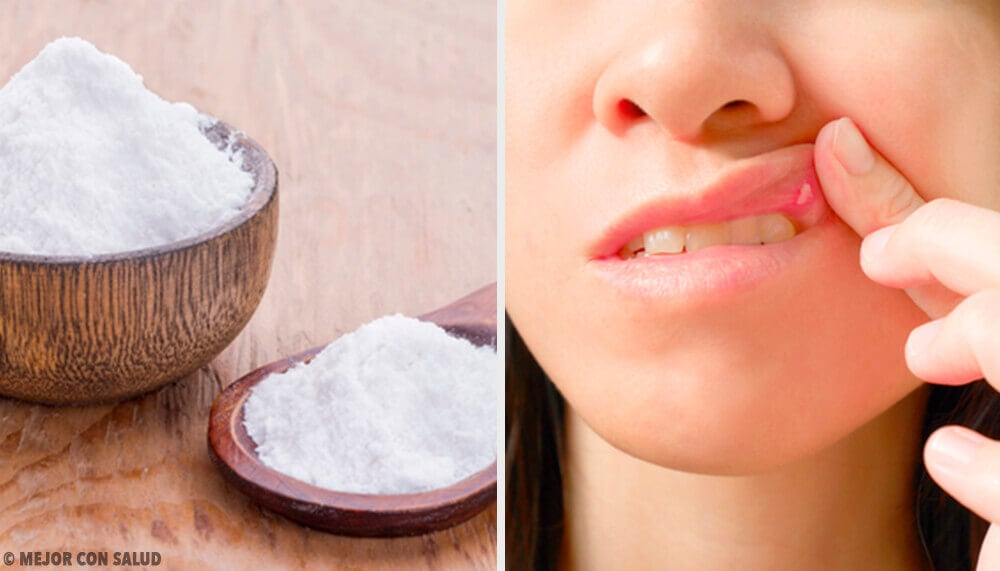 8 remedios para curar las llagas en la boca
