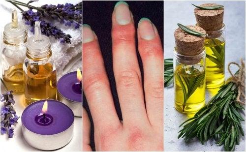5 remedios de origen natural para tratar los sabañones