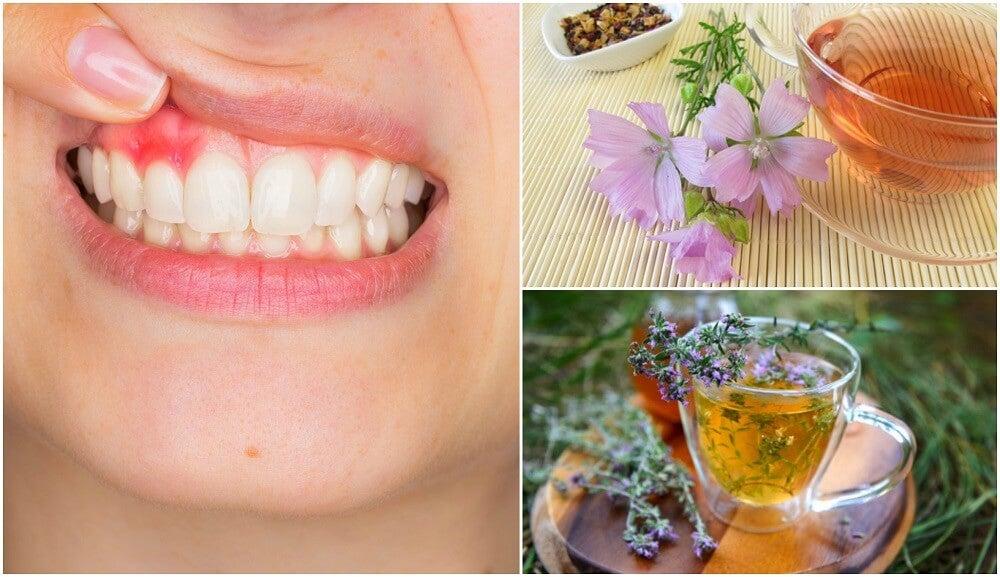 5 soluciones naturales para controlar los síntomas de la gingivitis