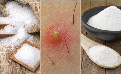Exfoliante para granos en las piernas