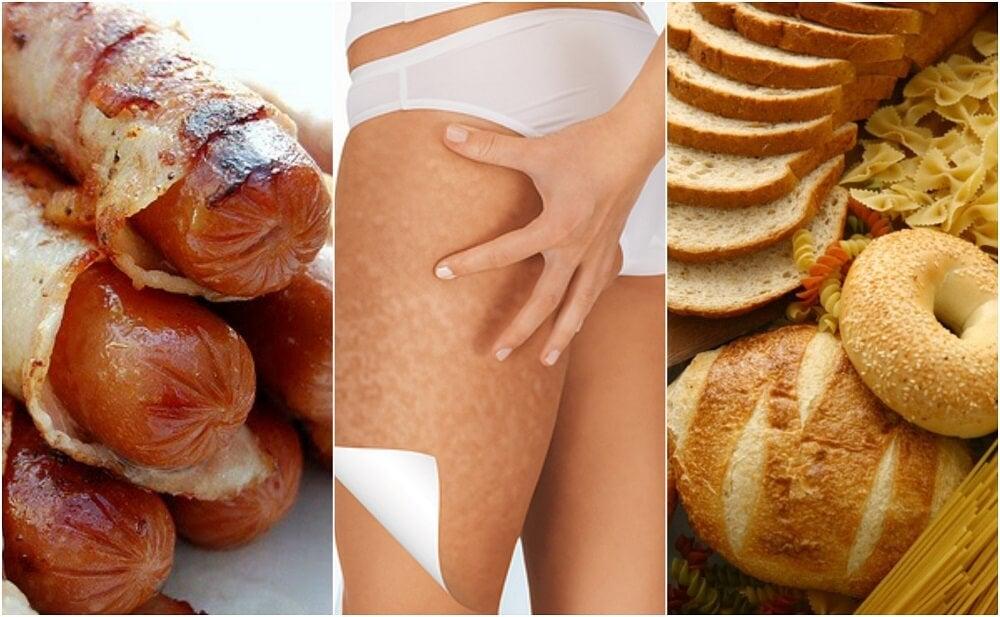 6 alimentos que empeoran la celulitis