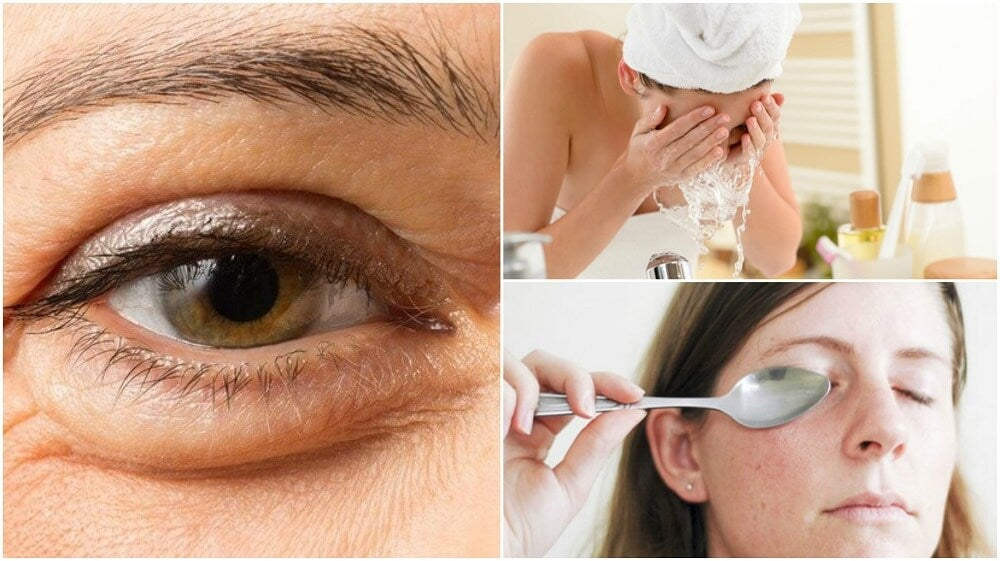 6 métodos naturales para reducir las bolsas bajo los ojos