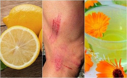 7 remedios naturales para curar rasguños en la piel