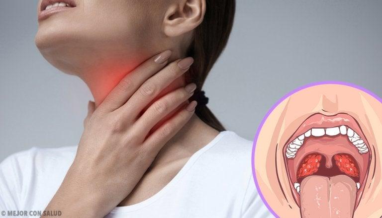 Absceso periamigdalino: todo lo que debes saber
