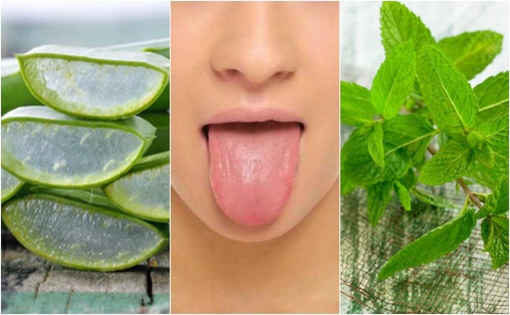 Alivia las ampollas en la lengua con 6 tratamientos de origen natural
