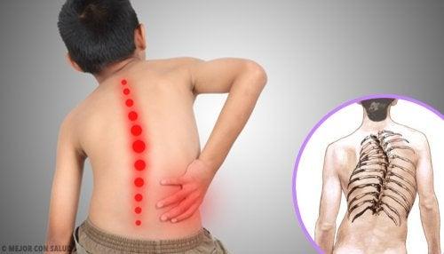 Atrofia muscular espinal: todo lo que debes saber