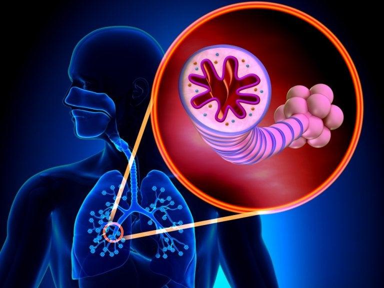 Bronquiectasia: todo lo que debes saber