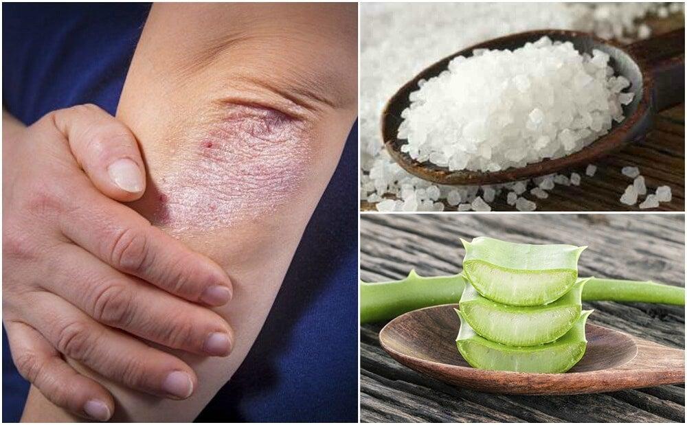 Cómo combatir los hongos en la piel con 5 soluciones naturales