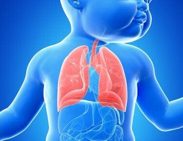 Causas de la bronquiectasia