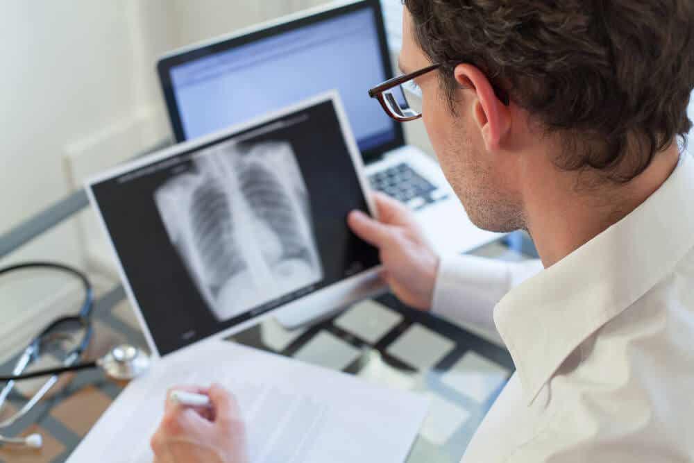 Médico mirando una radiografía