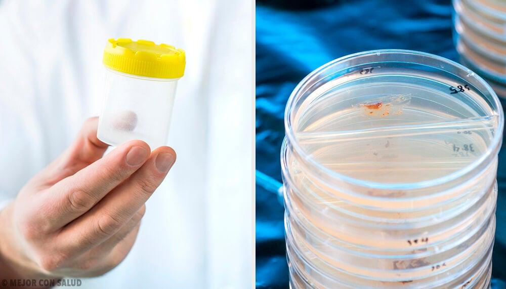 El papel de las heces en el diagnostico clínico — Mejor ...