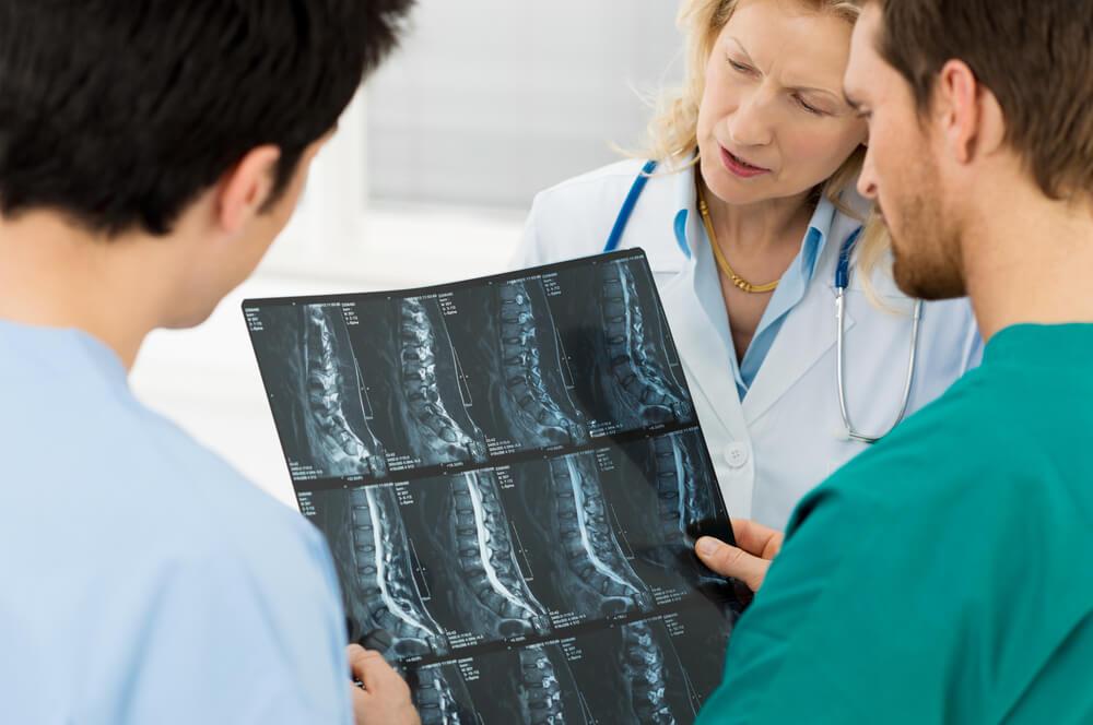 Estenosis espinal causas, síntomas y tratamiento