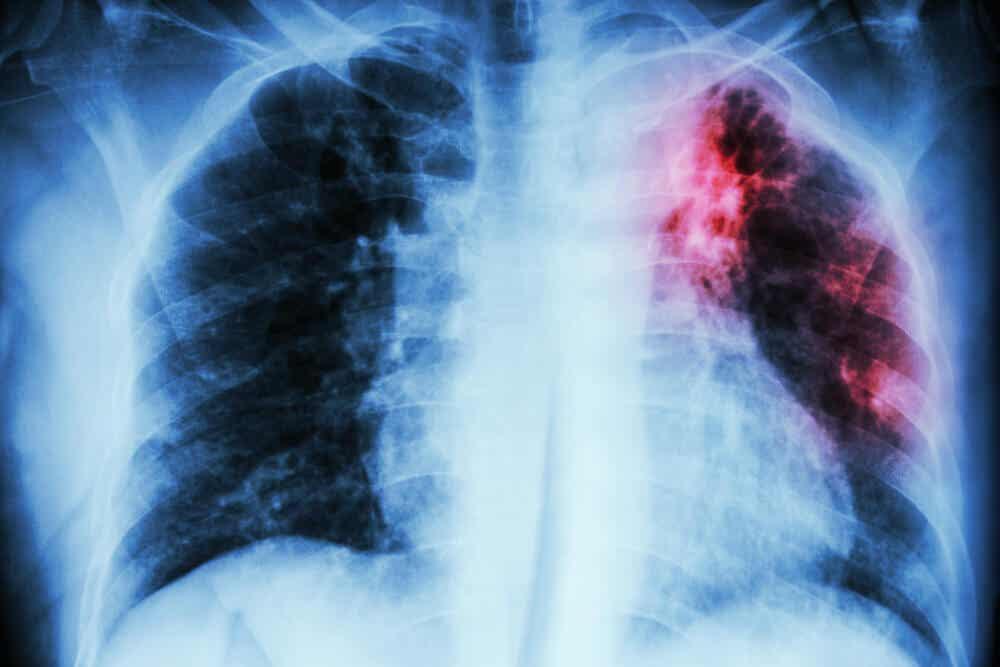 Radiografía de una persona con enfermedad pulmonar intersticial