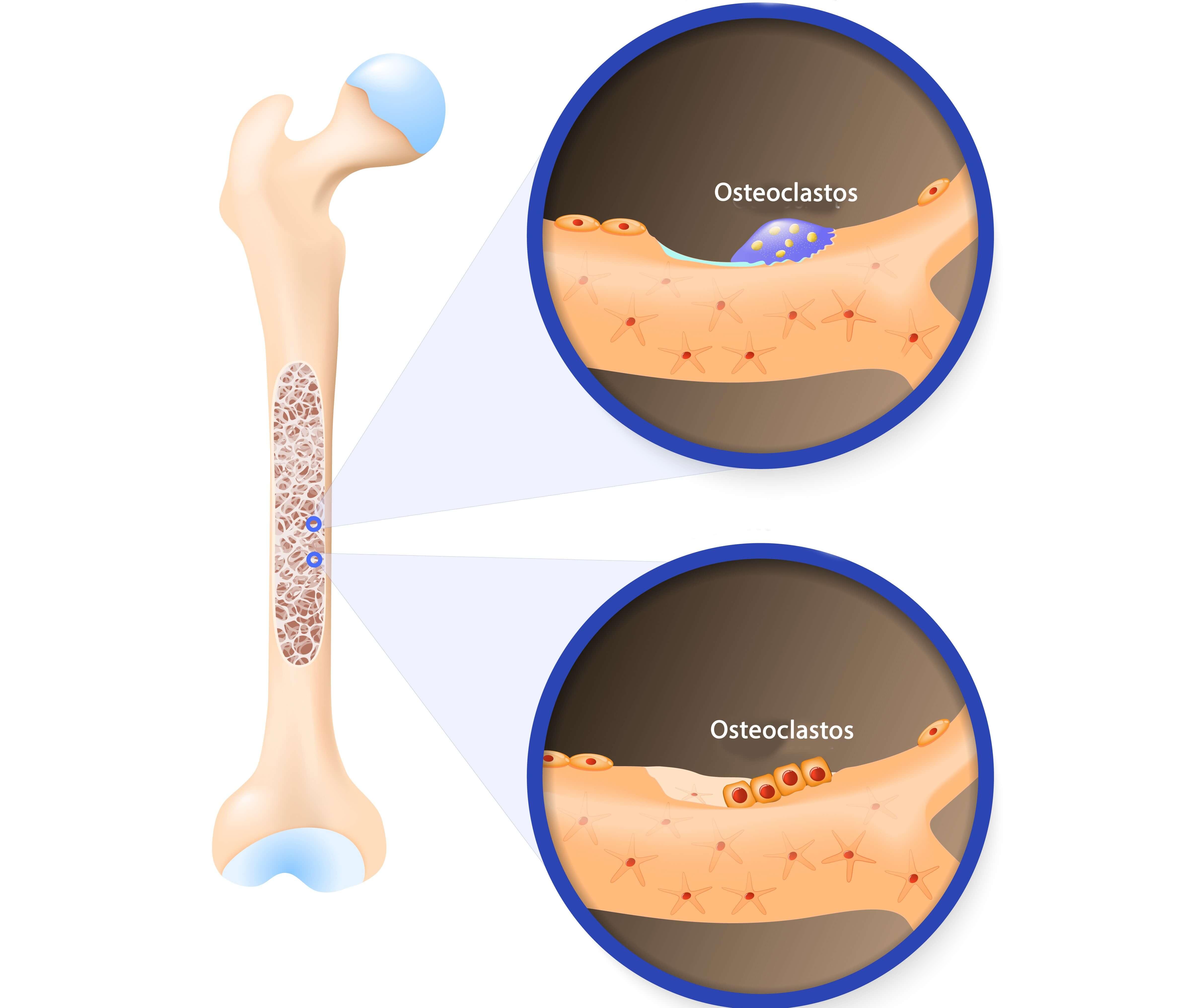 Los osteoclastos