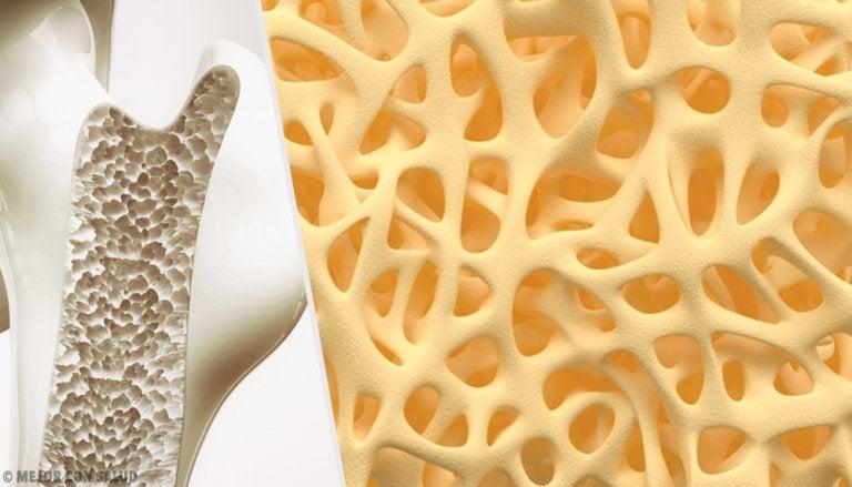 Osteogénesis imperfecta: causas y tipos