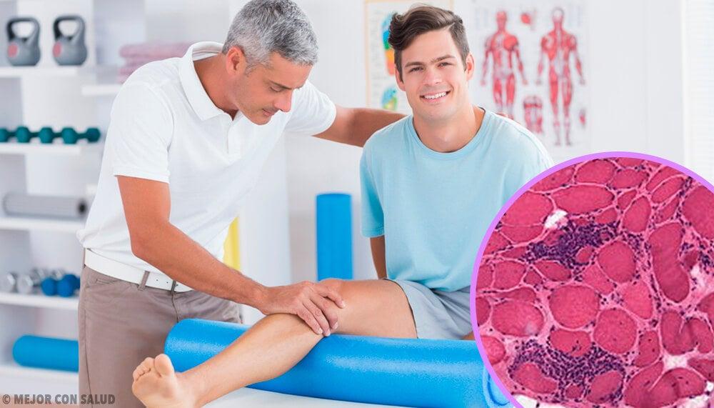 Polimiositis causas y síntomas