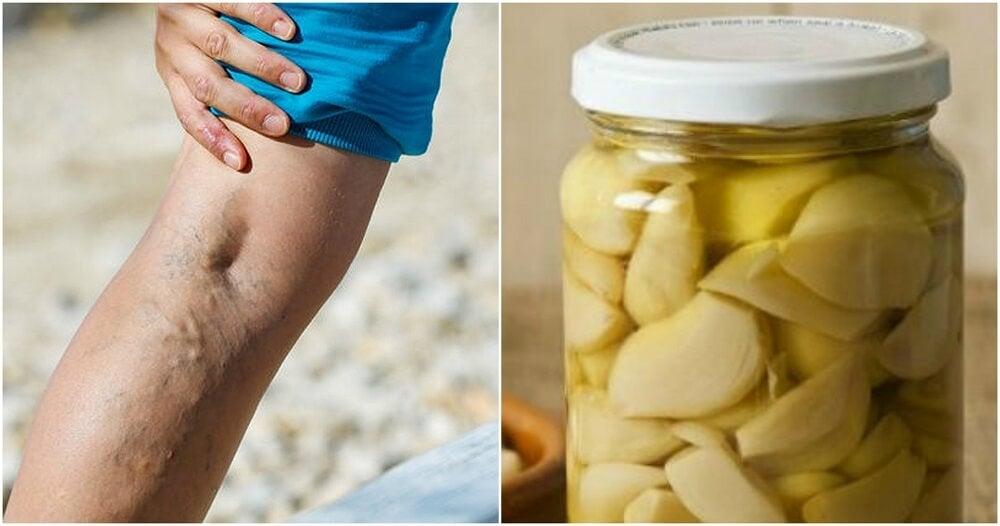 Cómo hacer pomada de ajo y limón para las varices
