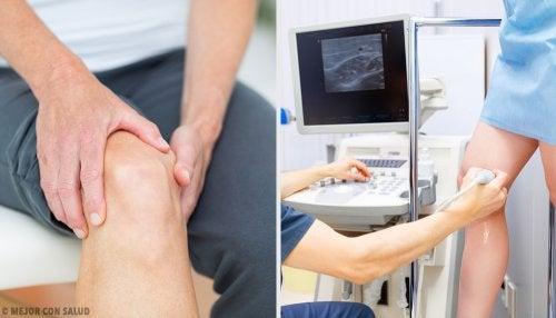 Tendinitis rotuliana: causas, síntomas y tratamiento