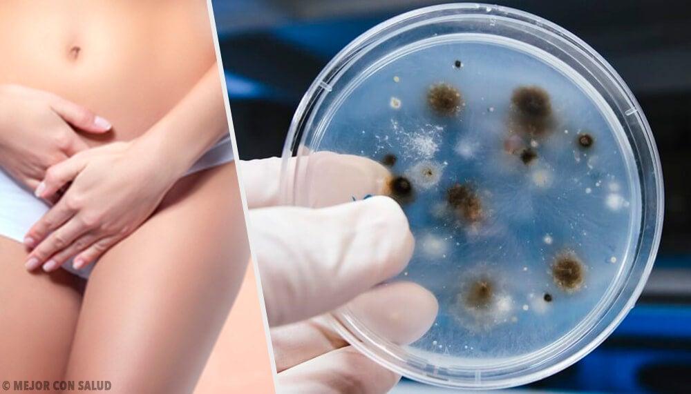 hongos como una causa de úlceras genitales