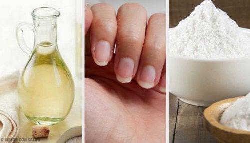 Uñas amarillentas: 4 remedios caseros para tratarlas