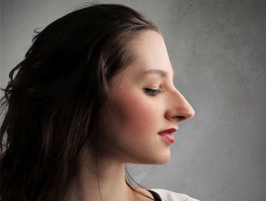 Acromegalia nariz