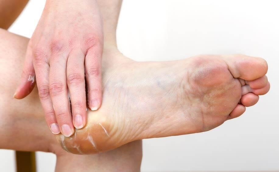 evitar-las-peladuras-en-los-pies