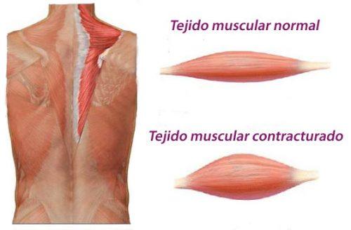 Cómo se forma una contractura muscular