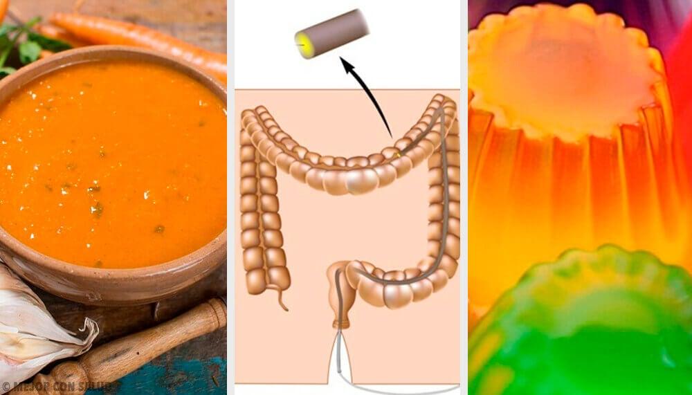 ¿Cuál es la dieta y preparación previa a una colonoscopia?