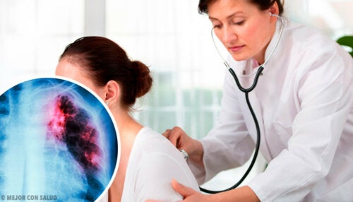 Enfermedad pulmonar intersticial