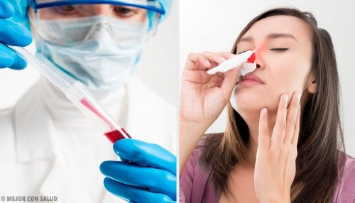 Hemofilia: síntomas y fundamento genético