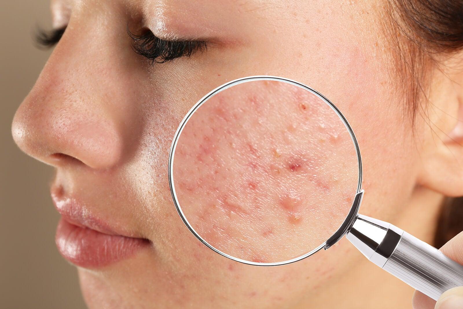 8 pasos para eliminar el acné.