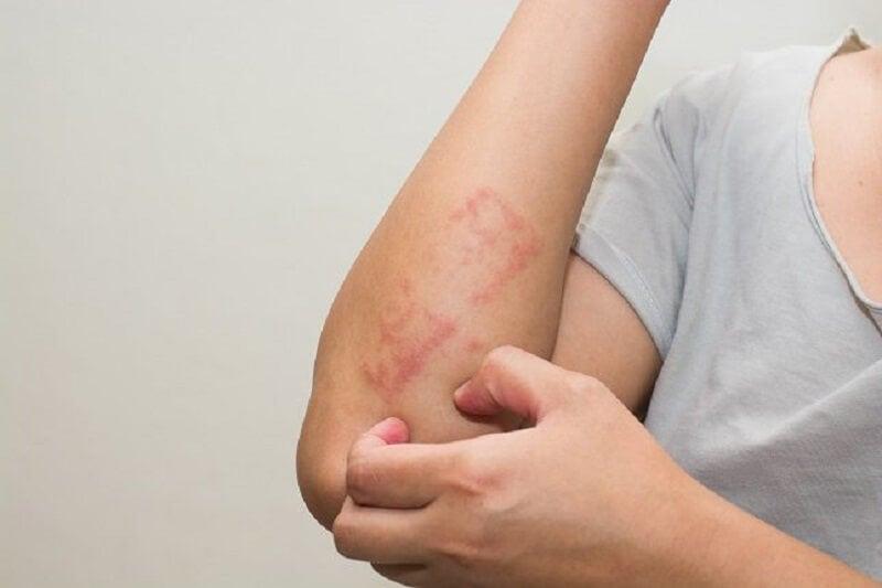 10 síntomas de leucemia que se suelen pasar por alto