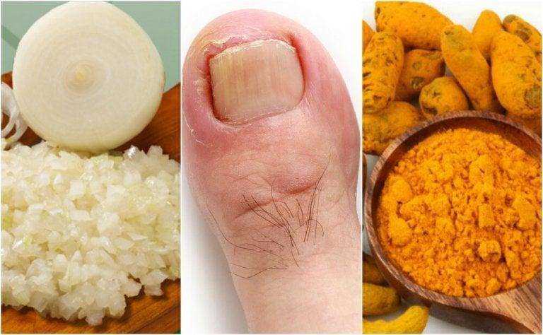 Cómo preparar 6 remedios caseros para aliviar los uñeros