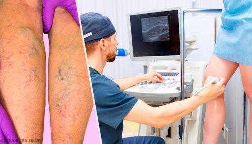 Tratamiento tópico y oral para prevenir y tratar las varices