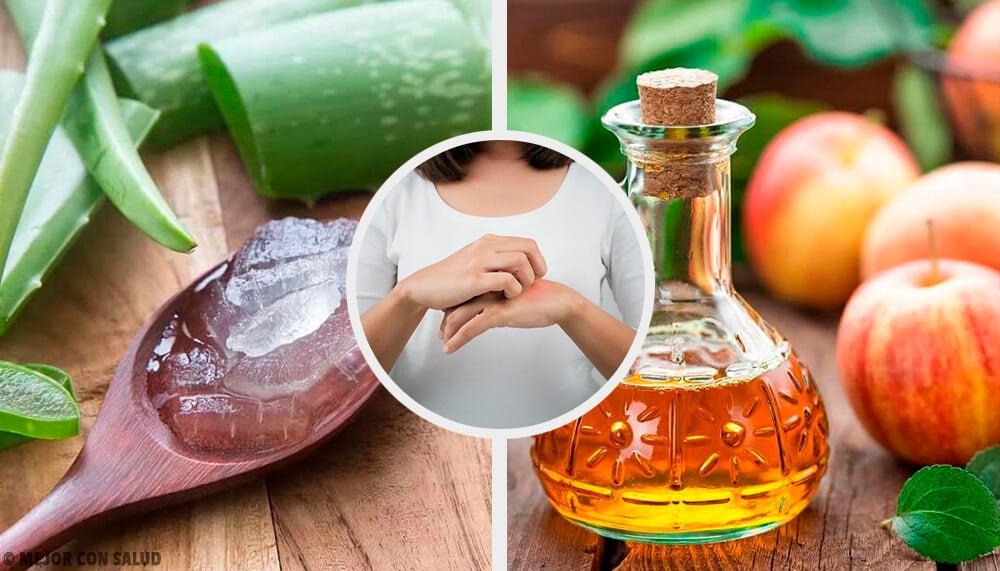 15 remedios para curar los hongos de la piel