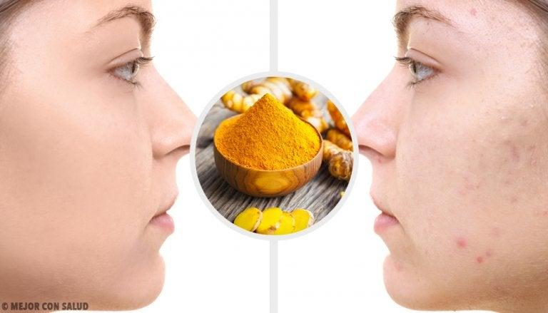 5 mascarillas con cúrcuma para eliminar las cicatrices de acné