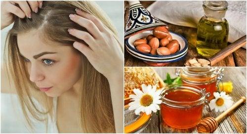 4 remedios caseros para combatir la caspa seca