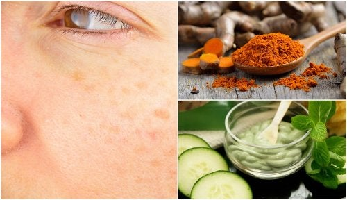 5 remedios naturales para evitar las manchas de la edad
