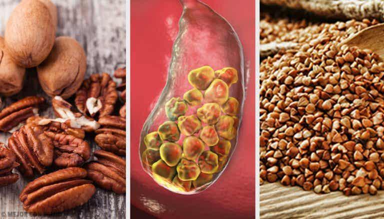 6 alimentos para combatir las piedras biliares