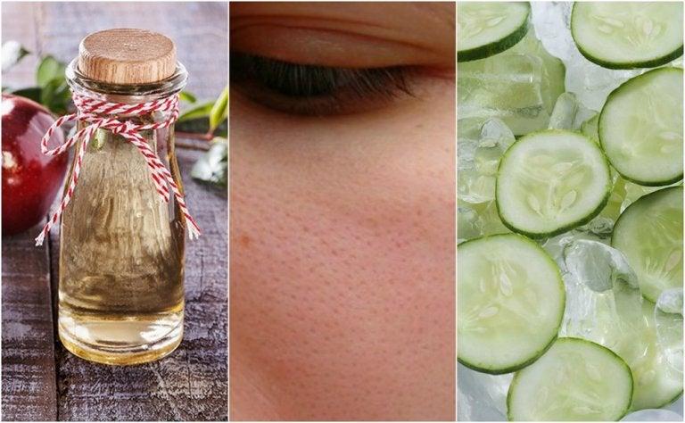6 remedios naturales que puedes usar para cerrar los poros abiertos