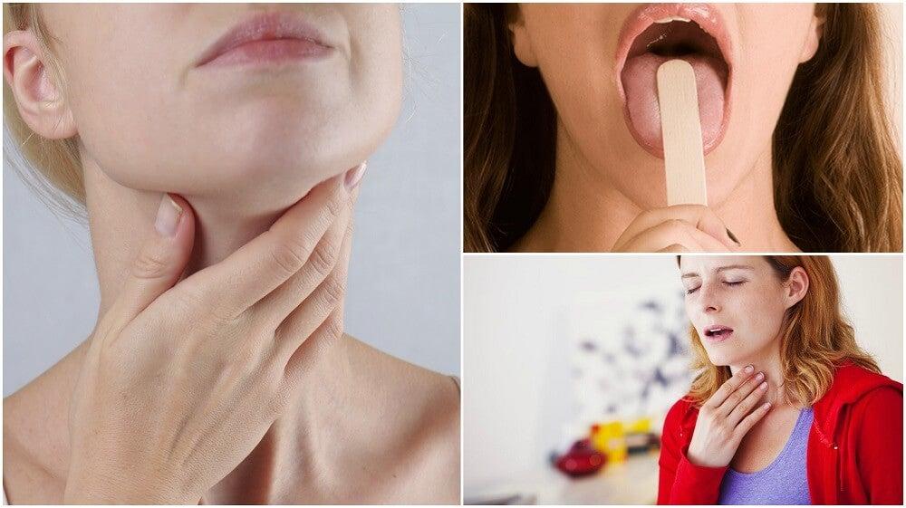 8 síntomas iniciales de cáncer de garganta que no debes ignorar