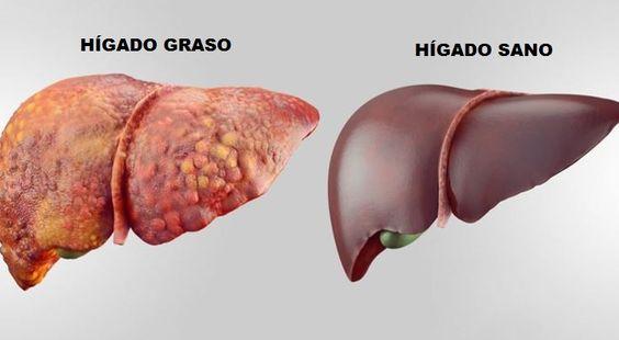 La betaína favorece la limpieza del hígado eliminando grasas del organismo