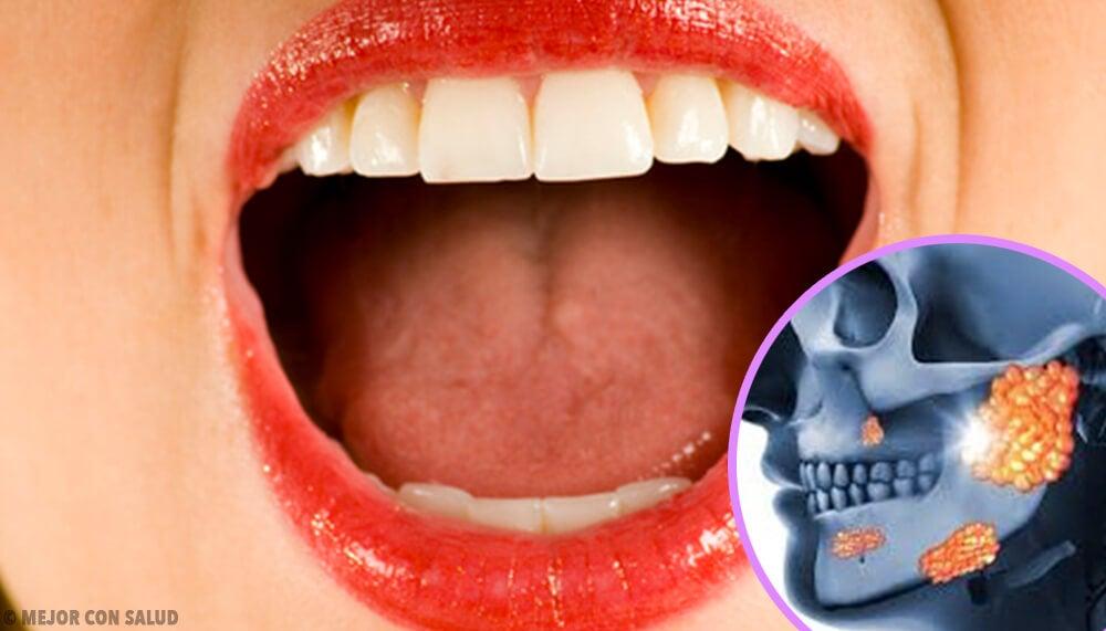 Cálculo de la glándula salival